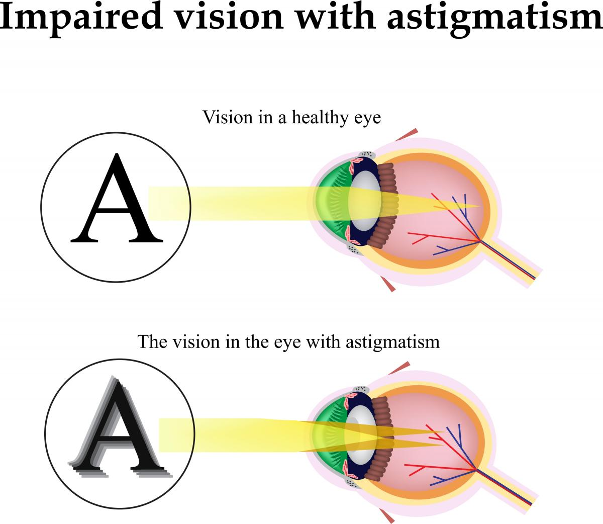 Can my astigmatism be corrected with cataract surgery?