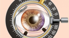 How many appointments / visits is cataract surgery?