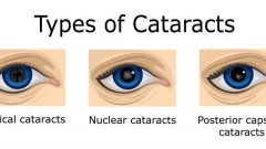 What kind of cataract do I have?